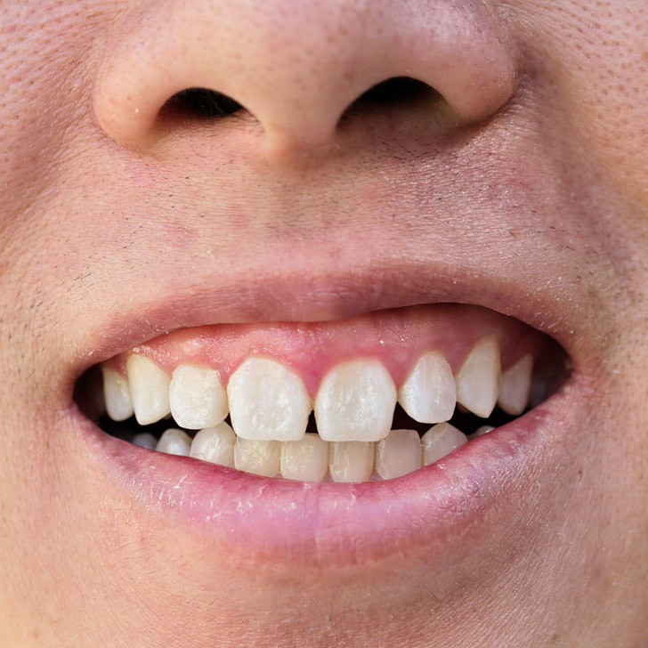 Smile Brilliant Reviews (Best Teeth Whitening Products).