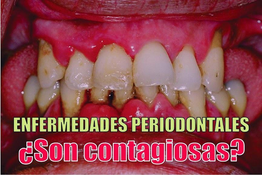 #enfermedad-periodontal