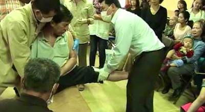 Ông Yên đang điều trị cho một bệnh nhân bị liệt.