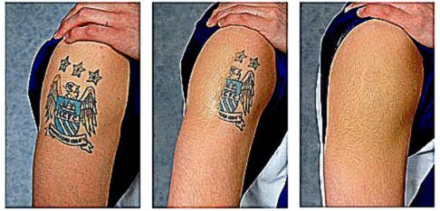 How to remove a tattoo free tattoo pictures for How to get rid of a tattoo at home