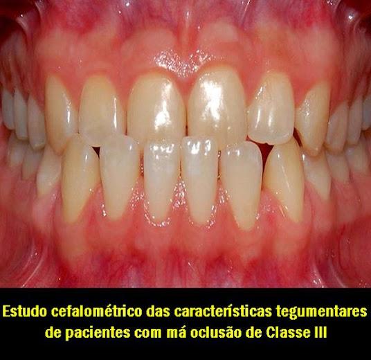 ortodontia-classe-III