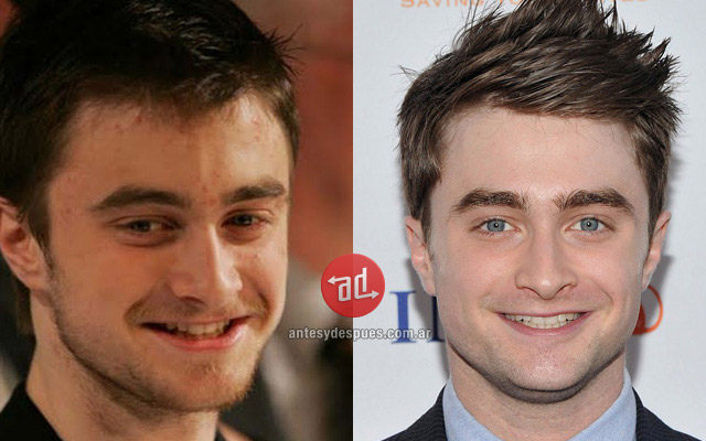 Photos of Daniel Radcliffe with acne