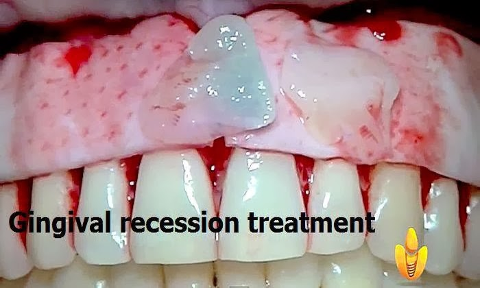 Gingival-Recession