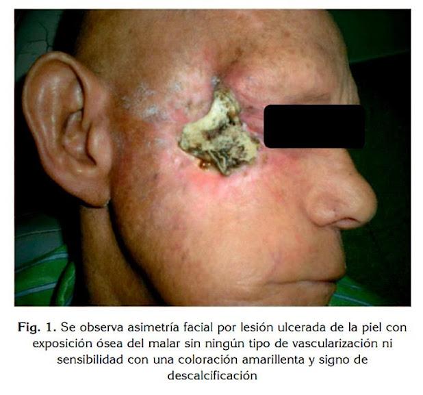 Osteorradionecrosis