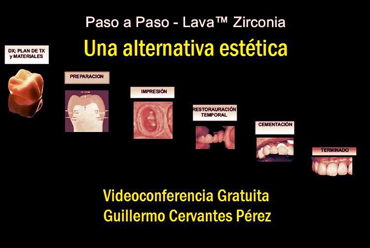 Lava-Zirconia