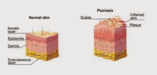 Pengedar Shaklee Putrajaya, Psoriasis boleh sembuh