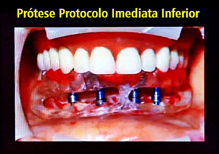 protese-dental