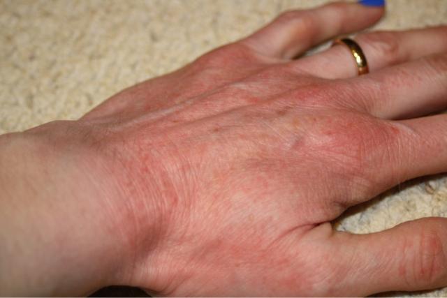 bad dry skin