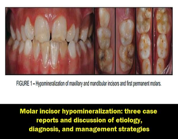 Molar-incisor-hypomineralization