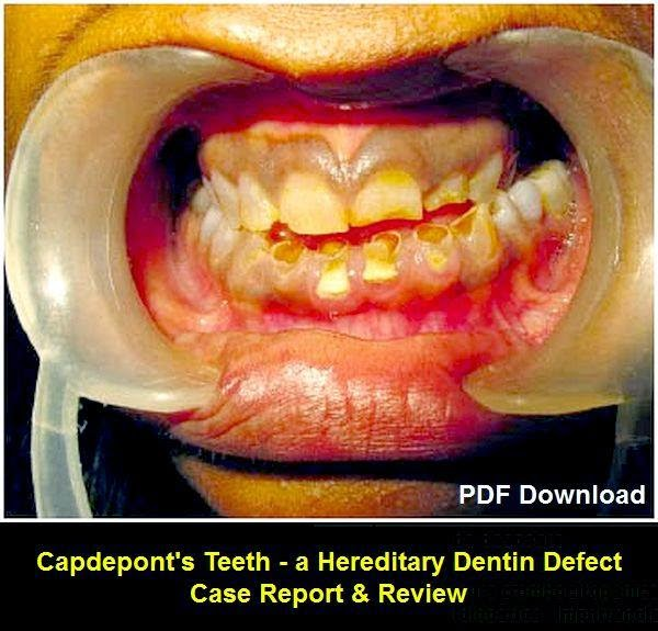 Capdepont's-Teeth