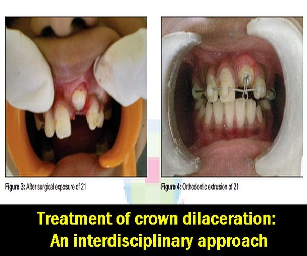 Crown-Dilaceration