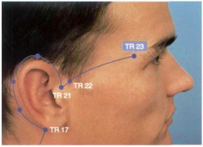 Triple Calentador 17 (TC 17) Yi Feng