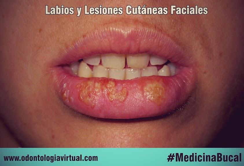 lesiones-labios