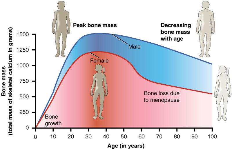 {focus_keyword} Kenapa Wanita Lebih Mudah Kena Osteoporosis Berbanding Lelaki? 615 Age and Bone Mass osteoporosis
