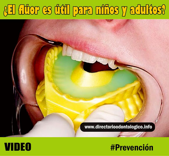 Fluor Dental Prevencion
