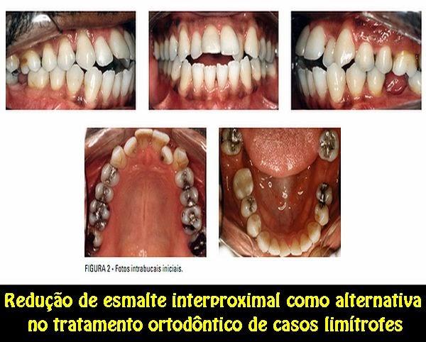 Redução-esmalte-interproximal