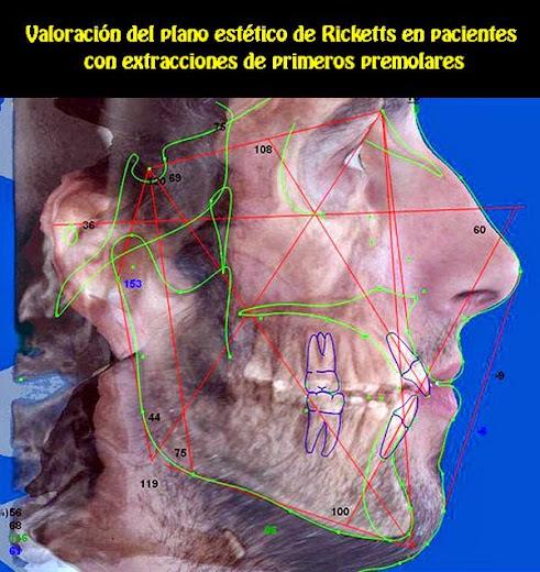Ortodoncia-con-extracciones