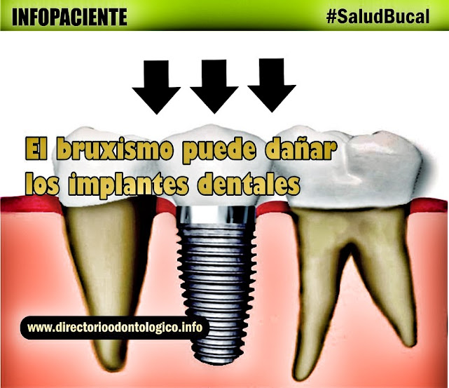 implante-dental-bruxismo