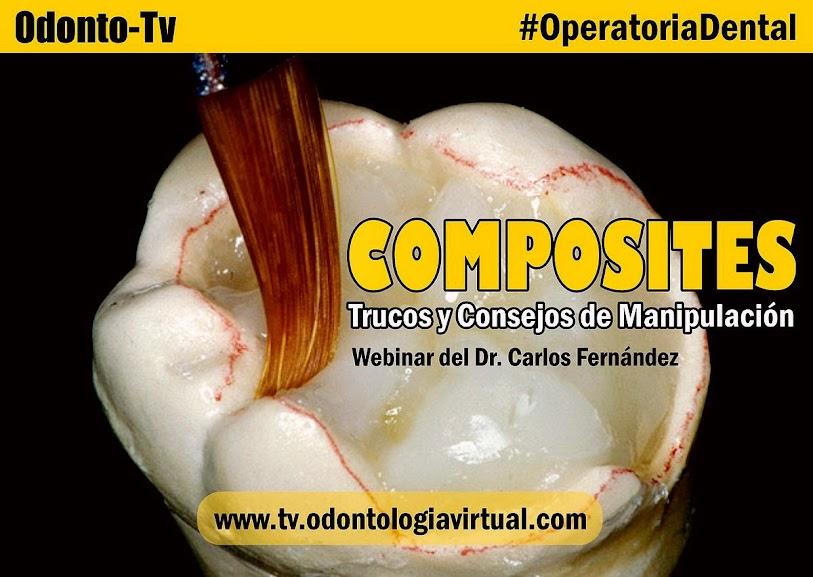 composites-dentales