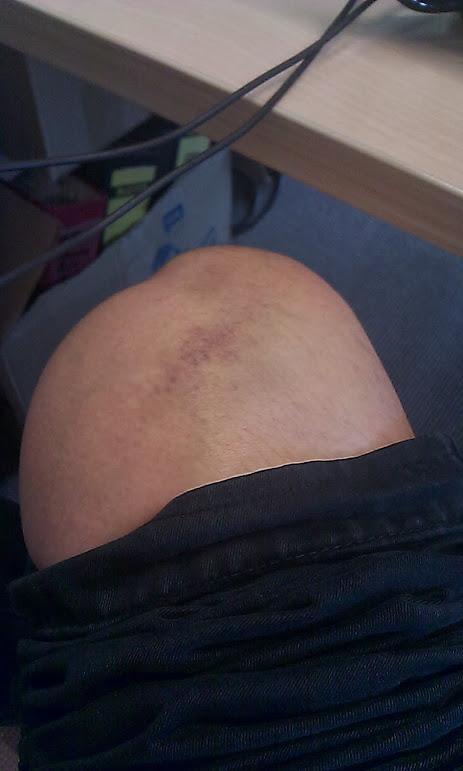 https://lh6.googleusercontent.com/-T9LxasLEYIM/Ujw9e1ML05I/AAAAAAAAAxk/pX5HALn625U/w463-h771-no/6.bruise.jpg