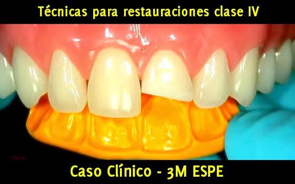 Clase-IV