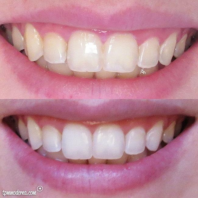Testamos Oral B 3d White Whitestrips Tpm Moderna