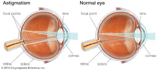astigmatizmi-i-syrit-2