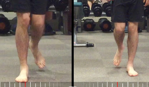 Gait analysis internally rotated knee