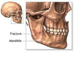 Tratament naturist pentru artrita temporo-mandibulara