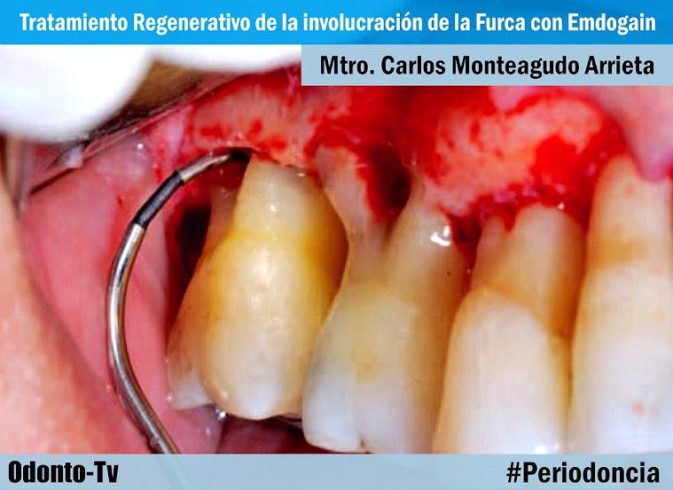furca-dental