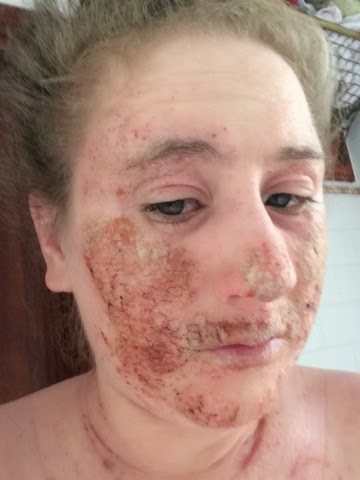 Hayley's journey through topical steroid withdrawal: Day