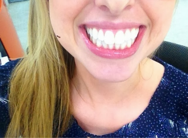 Teeth Whitening in London