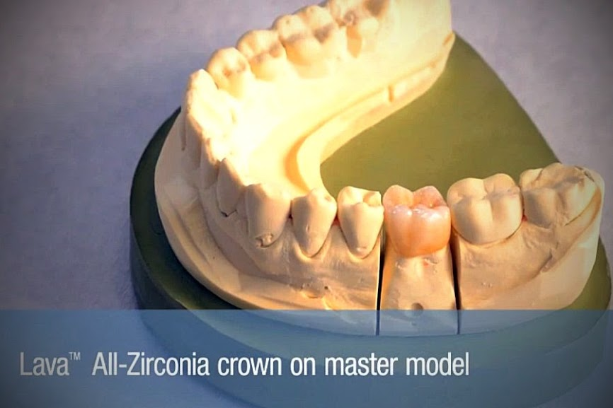 lava-zirconia-crown