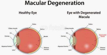 Gangguan Mata AMD dan Pengobatannya