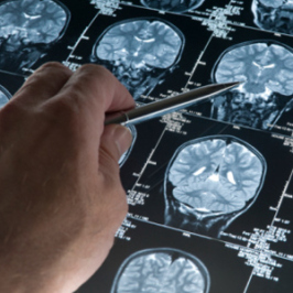 Health Tips: The Habit That Doubles Your Risk Of A Fatal Brain Bleed