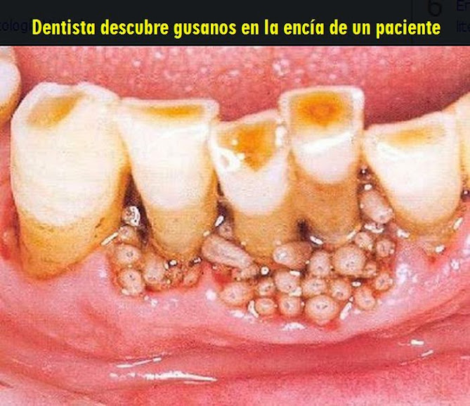 miasis-oral