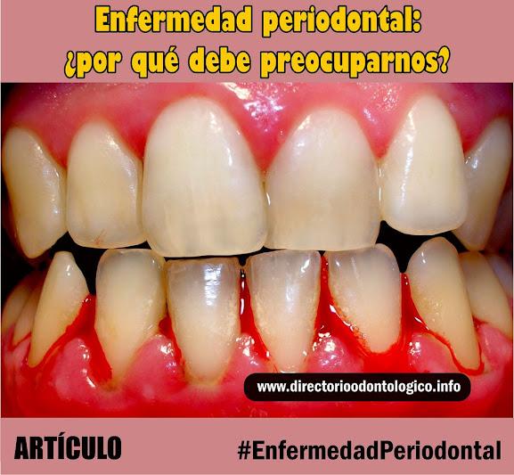 enfermedad-periodontal-gingivitis