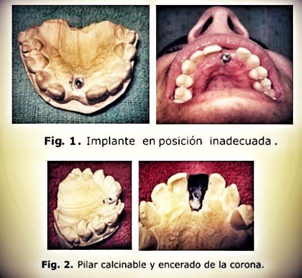 implantes-dentales-inadecuados