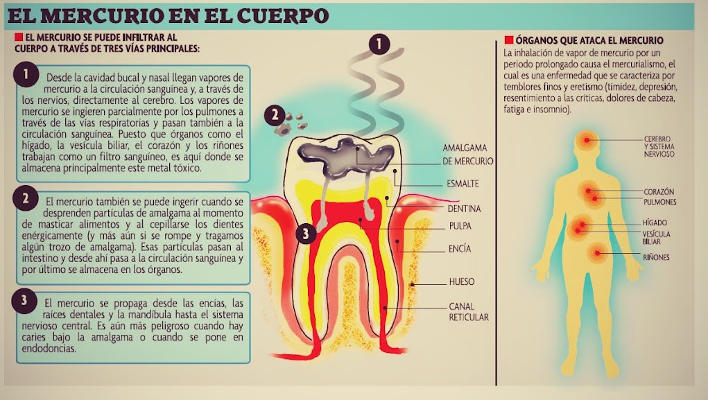 mercurio-amalgama-dental