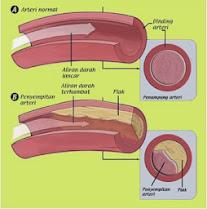 Cara Menyembuhkan Hiperlipidemia