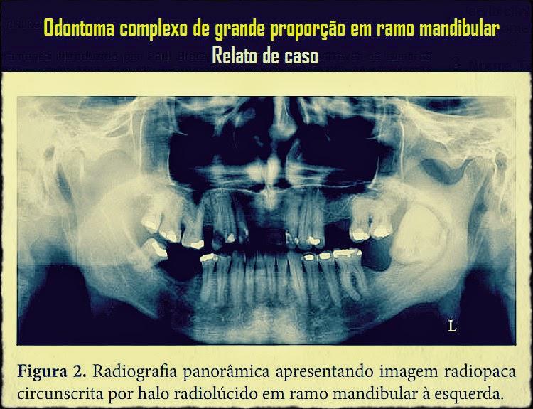 odontoma-complexo