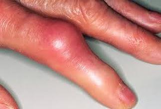 Laminine Omega+++ Untuk Penyakit Gout Artritis
