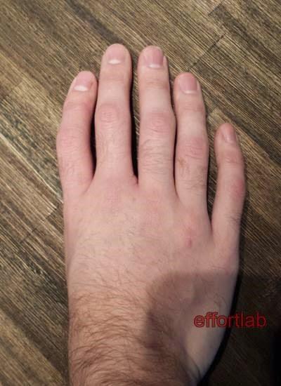tiada-ibu-jari-tangan-holt-oram