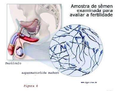 espermograma completo