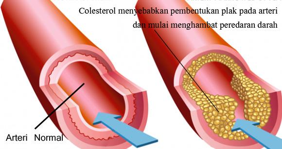 Foto menunjukan bagaimana bagaimana kolesterol tinggi bagi tubuh yang dapat menyumbat pembuluh darah arteri