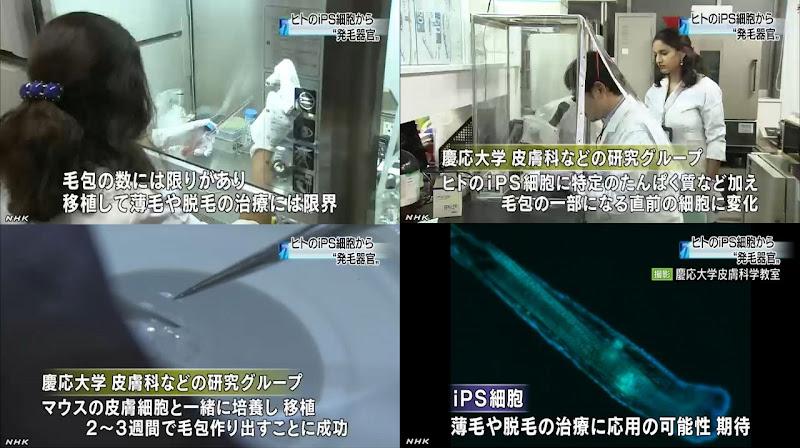 慶応大と京都大の研究チーム、iPS細胞で「毛包」再生 毛髪再生治療に応用