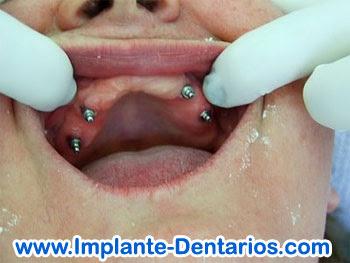 Implantes Dentários foto