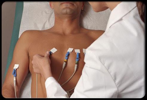 Điện tâm đồ (EKG) để xác định bệnh rung nhĩ
