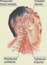 Herbal Penyakit Syaraf Kejepit Di Kepala