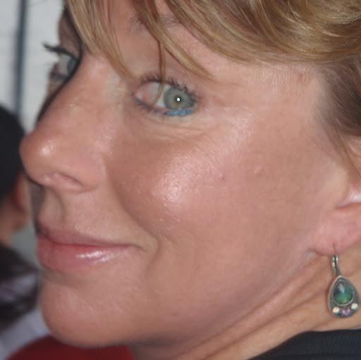 Lynn Klein Photo 26